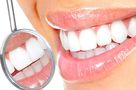 tandblegning tandlæge frederiksberg tandklinik