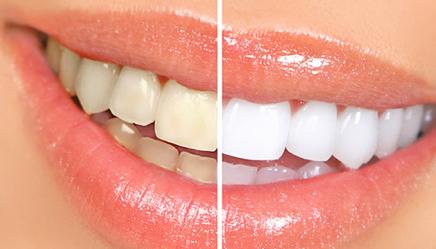 tandblegning frederiksberg