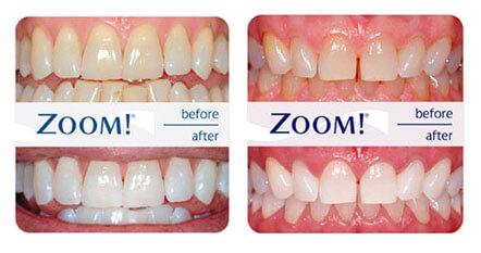 tandblegning-zoom-før-efter